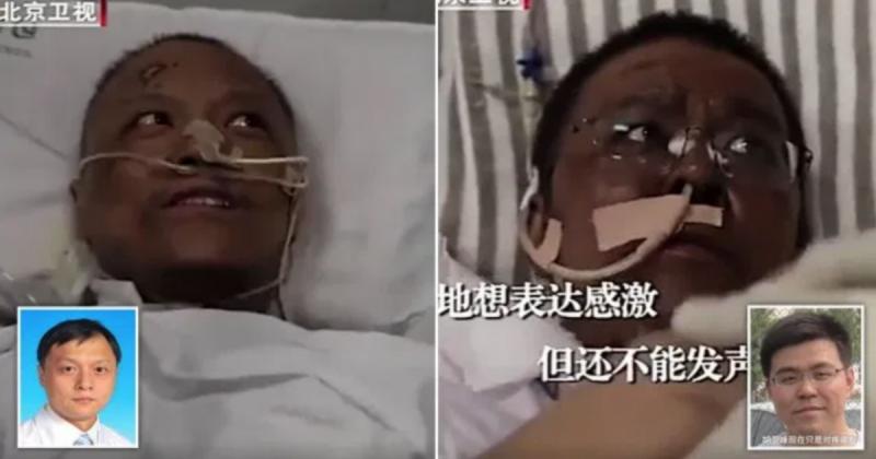 Coronavirus: medici cinesi si risvegliano dal coma con la pelle nera
